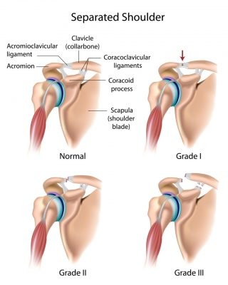 shoulder injuries fort worth