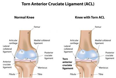 Orthpedics today treats ACL tear Ligament damage