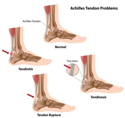 achilles-tendon-problems