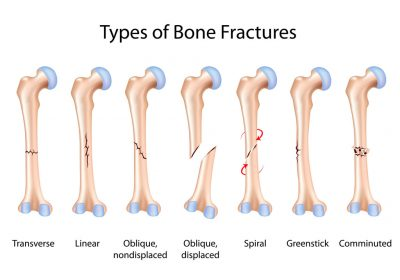types of bone fracture