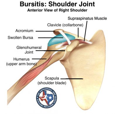 Shoulder injuries bursitis
