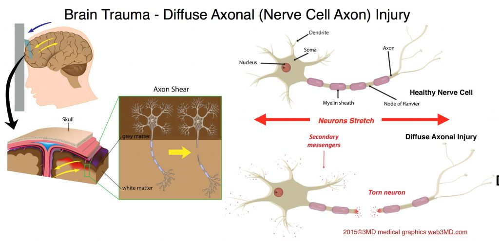 Sports Concussion cause Diffuse Axonal Injury in Traumatic Brain Injury