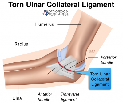 elbow, the ulnar collateral ligament (UCL) injury