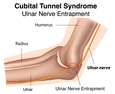 ulnar nerve injury from stretching over the end of the humerus bone