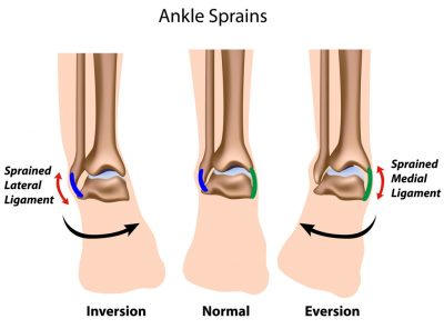 Ankle Sprains and Strains (Ligament and Tendon Injuries)