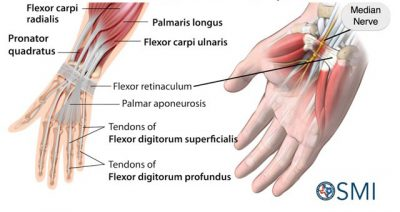 hand and wrist injury carpal tunnel syndrome
